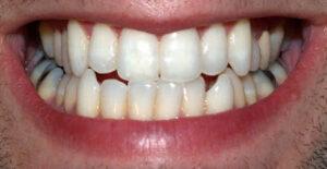 أفضل معجون أسنان طبي